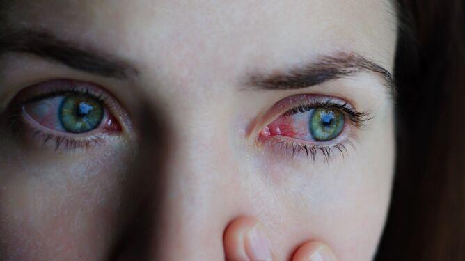 Podrażnienie oczu. Jak sobie radzić, kiedy wynika z alergii?